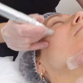 Microneedling Eden Beauty Group