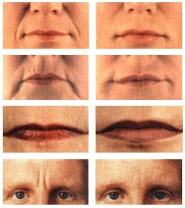 Botox / Cosmetic Injectables Before and After Pictures